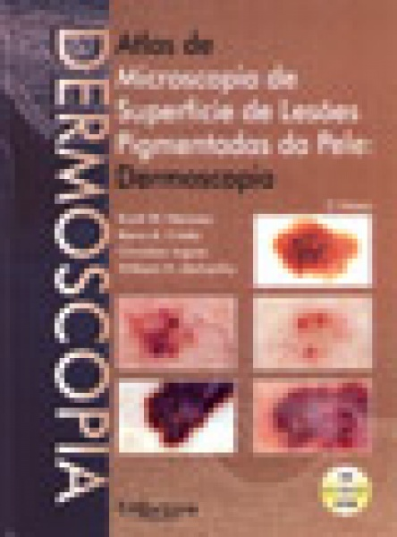 Atlas De Dermoscopia C/ Cd-Rom
